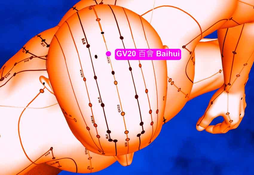 Acuponto GV20