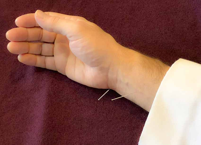 Acupuncture Relief For Congestive Heart Failure