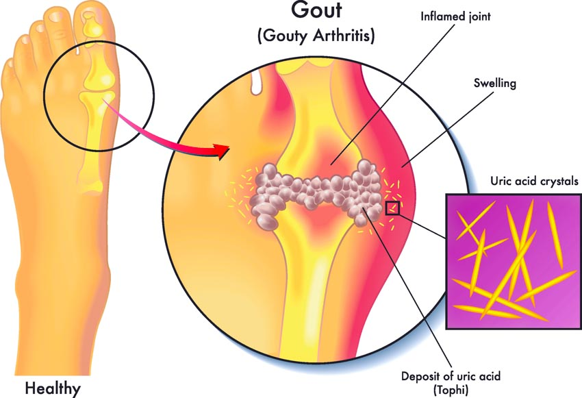 Acupuncture Gout Relief Confirmed In Medical Trial