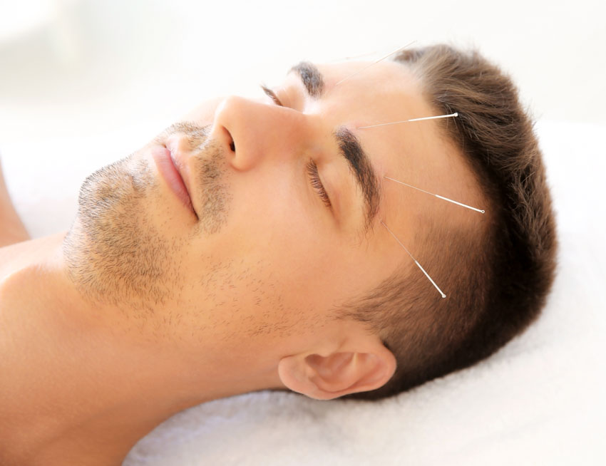 acupuncture migraine