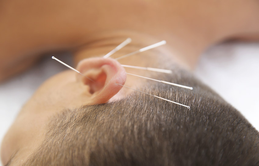 Acupuncture and Herbs Eliminate Meniere's Disease
