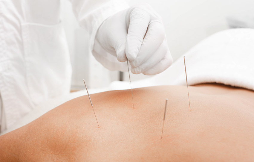 florida acupuncture mayo clinic