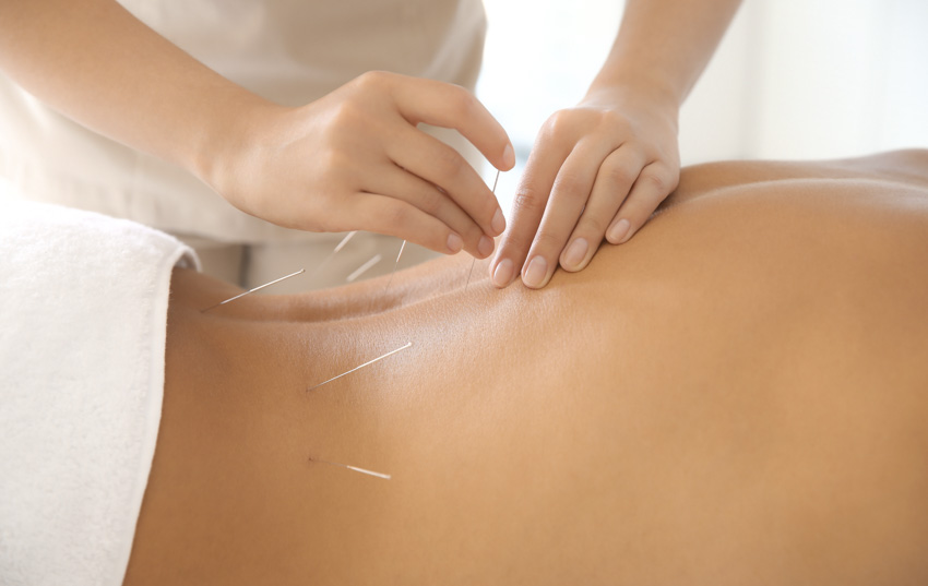 lumbar acupuncture