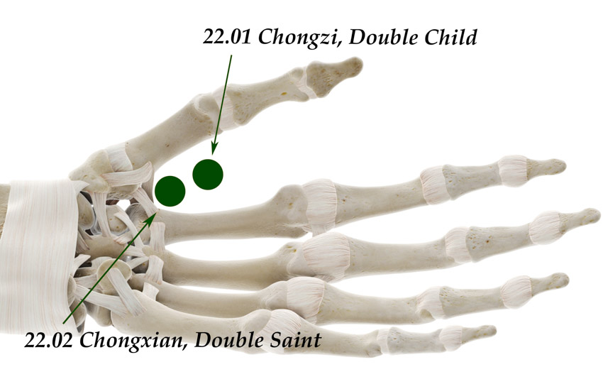 Acupuncture for Hand Paralysis And Spasticity