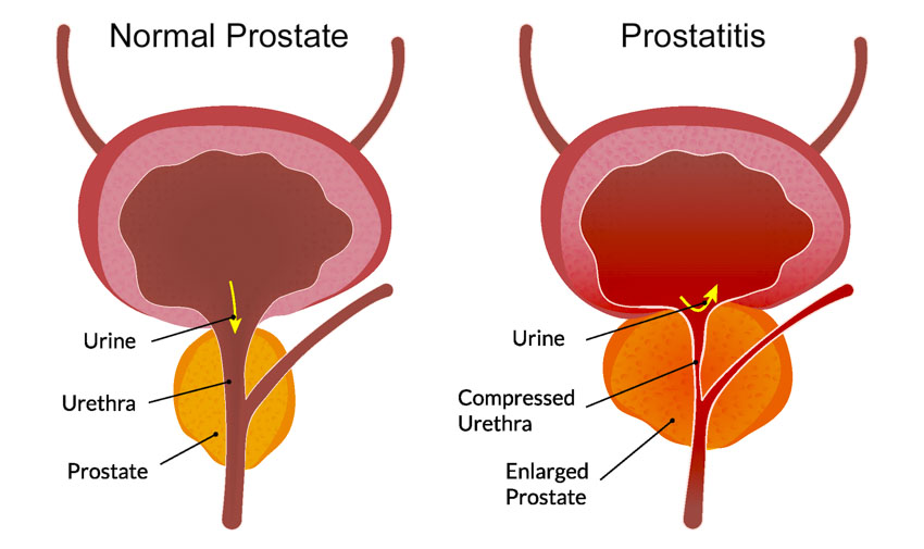 chronic prostatitis treatment bacterial