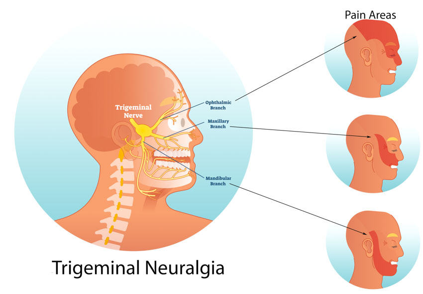 Acupuncture Increases Drug Efficacy For Trigeminal Neuralgia