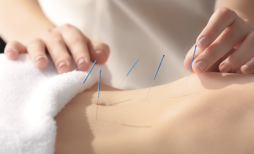 Acupuncture and Fertility - Is Acupuncture a Good Natural Fertility Treatment?