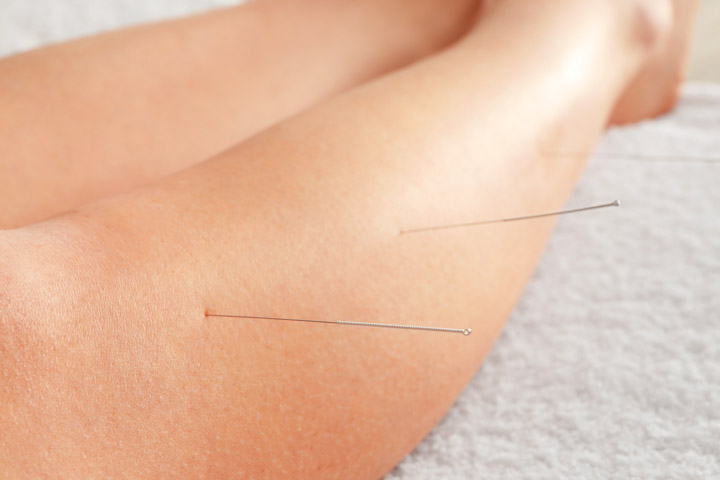 Acupuncture Soothes Gallbladder Attacks