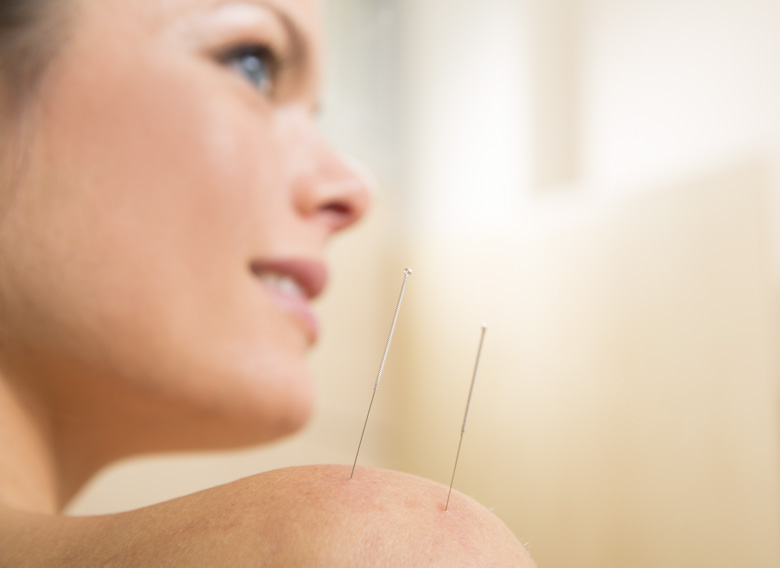 Acupuncture applied to the shoulder.