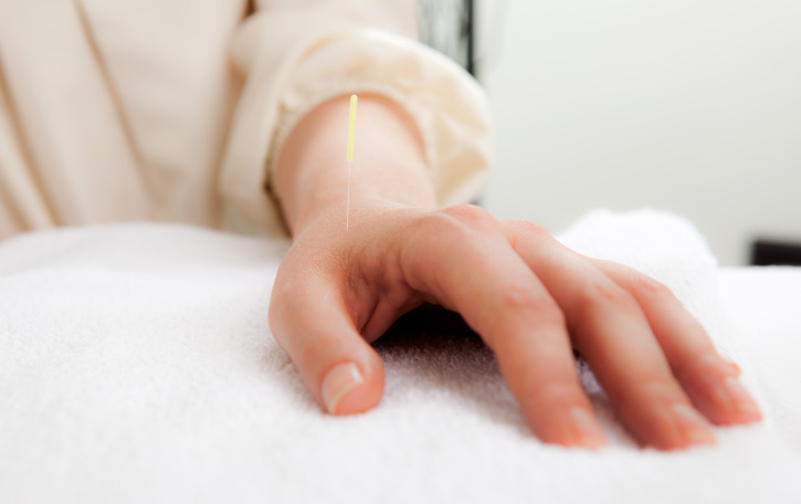 Acupuncture Carpal Tunnel Cure Mystery Solved