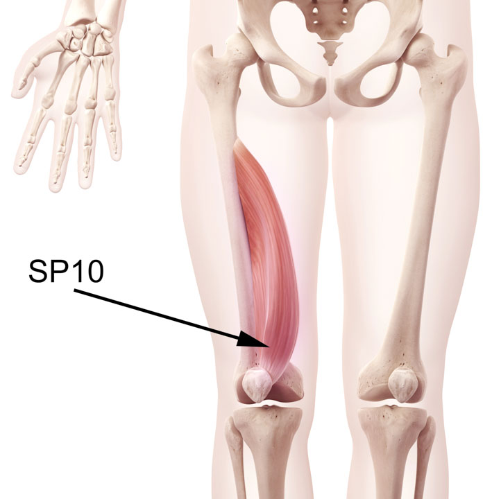 SP10 in the Vastus Medialis