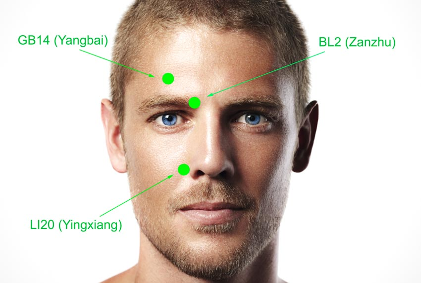 Acupuncture Restores Facial Movements For Stroke Patients
