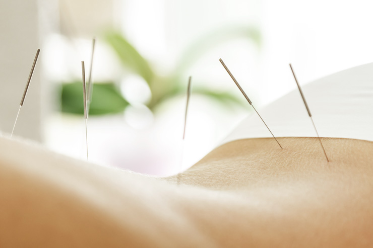 Acid reflux acupuncture treatment.