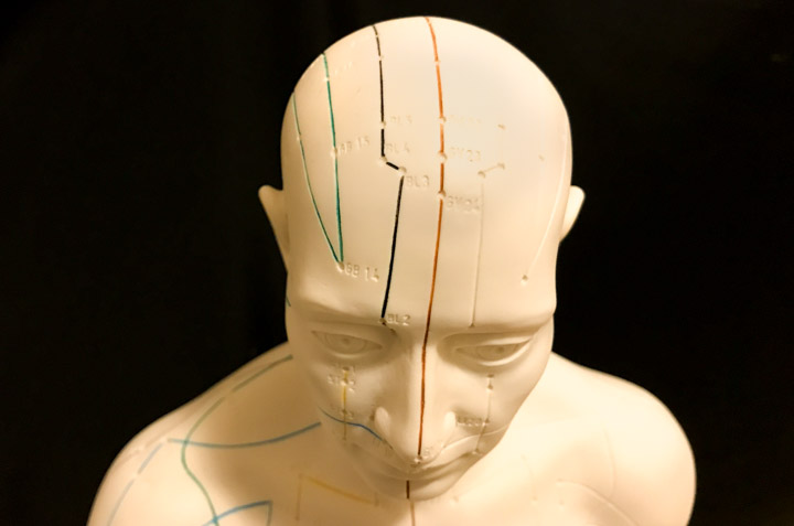 Acupuncture Beats Drug For Post-Stroke Depression