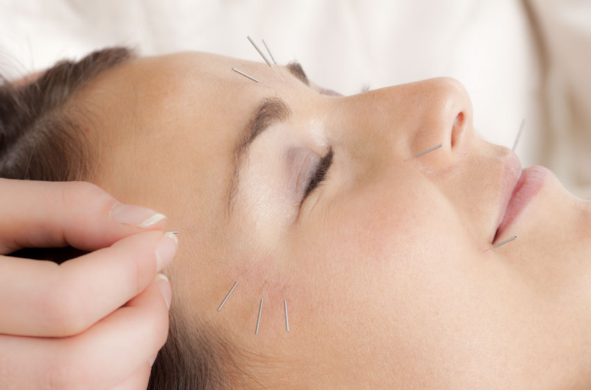 Acupuncture Facial Recovery For Bell's Palsy