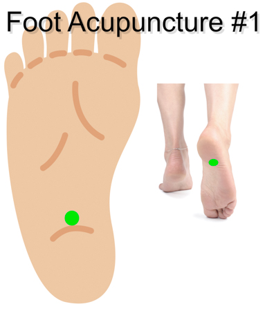 Acupuncture Plantar Fasciitis Relief Confirmed