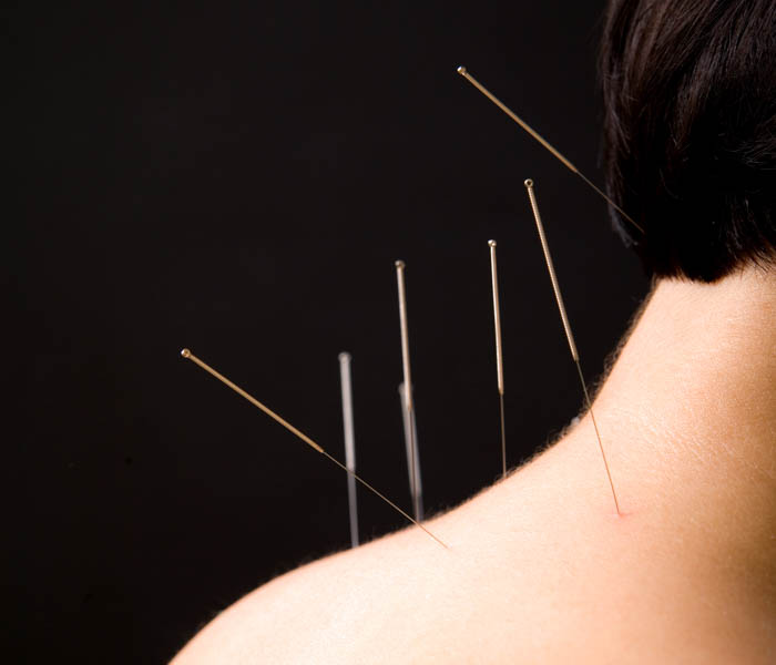 Acupuncture Soothes Neck Pain