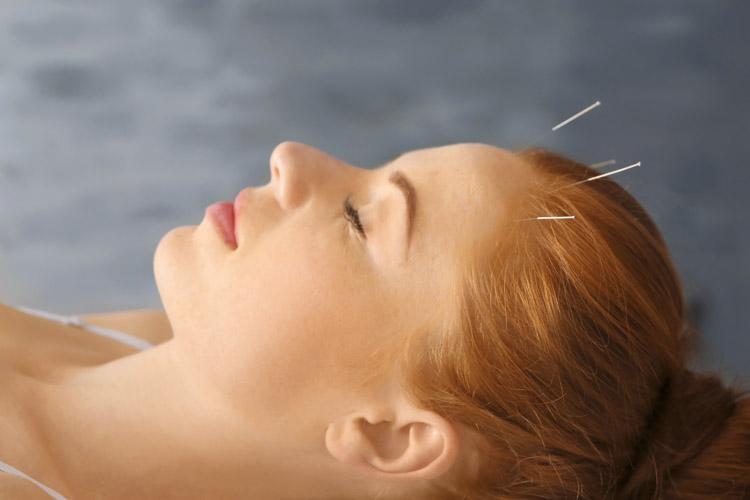 Acupuncture treatment session
