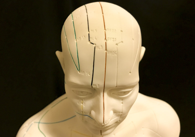 Scalp acupuncture