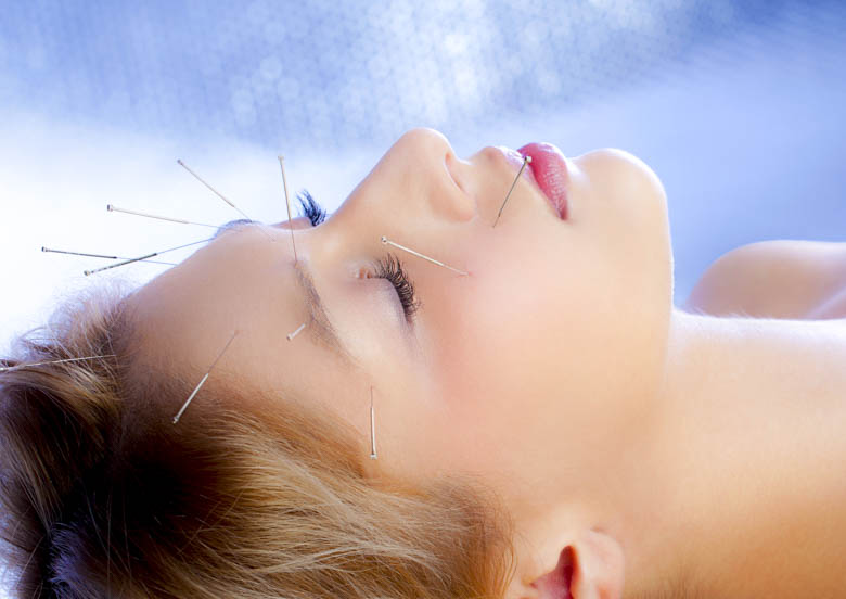 Scalp and face acupuncture