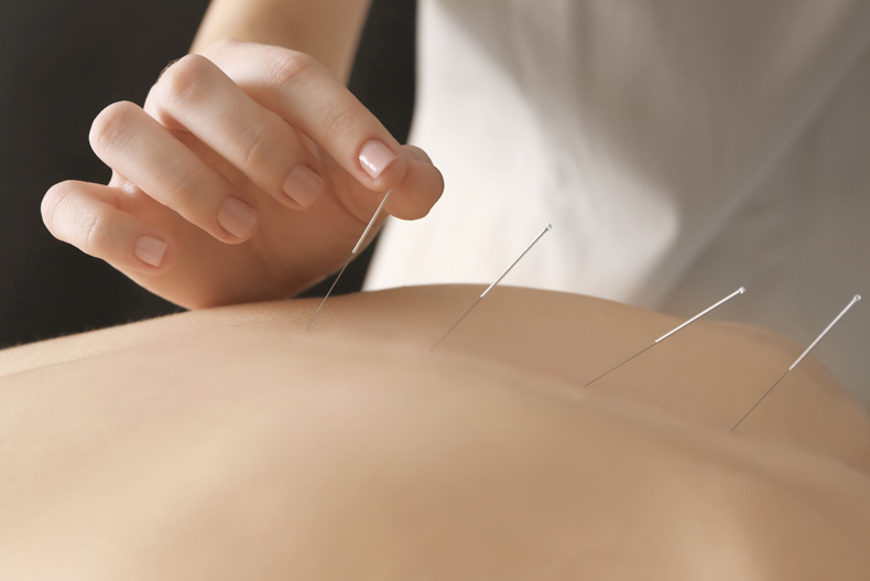 Acupuncture benefits stroke patients.