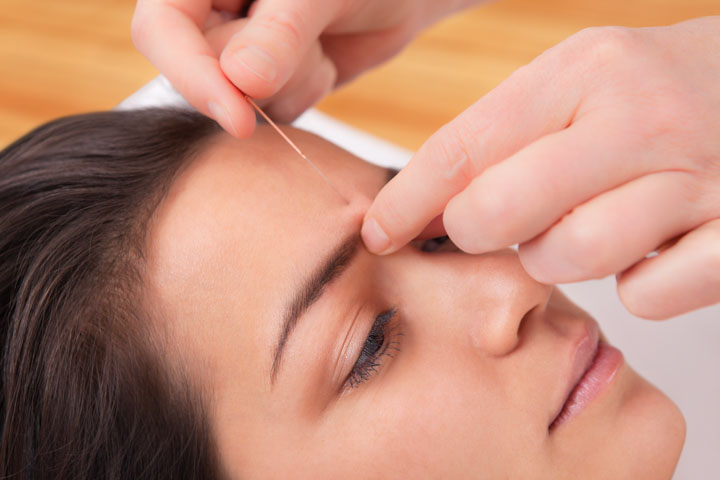 Acupuncture Controls Tourette's Syndrome Over Drugs