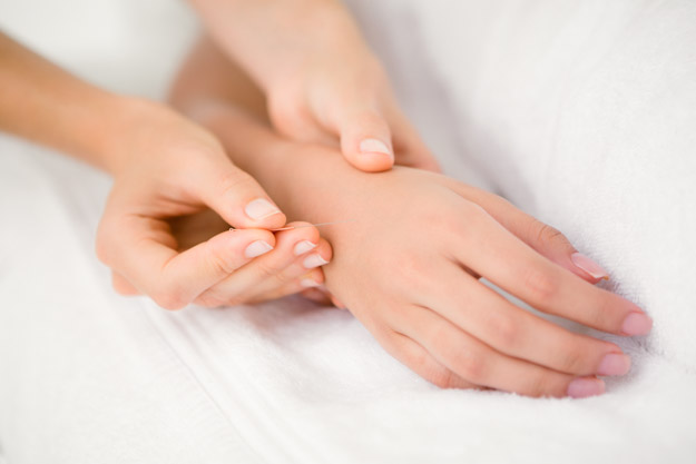 Treatment of carpal tunnel syndrome with filiform needles.