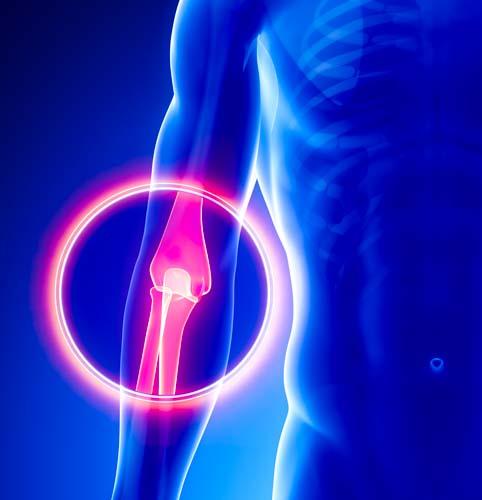Elbow Pain Sample of Online CEU Course