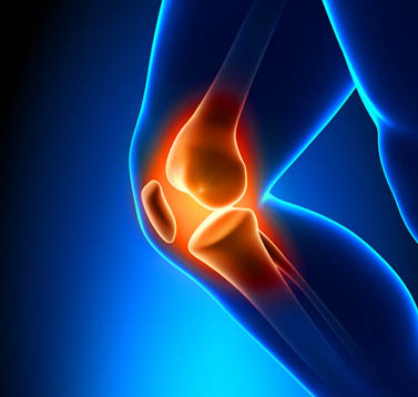 Knee pain shown at the site of the bones.