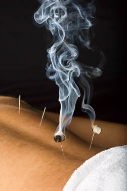 Moxibustion on the bladder meridian.
