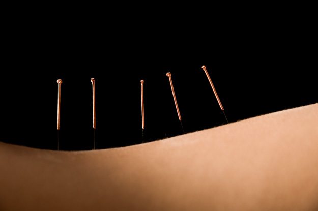 Acupuncture and Herbs Surpass Antiviral Drug For Shingles