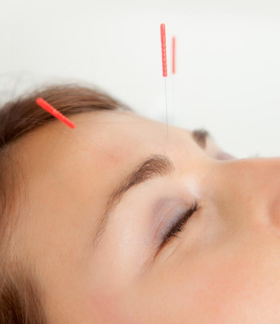 Acupuncture Improves Visual Acuity, Reduces Eyesight Defects
