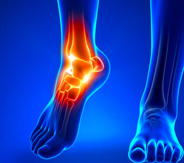 Ankle injuries treated with KD10 and Ahshi acupoints.