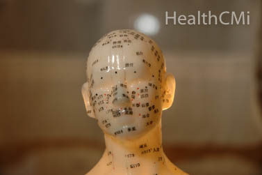 Head and scalp acupuncture.