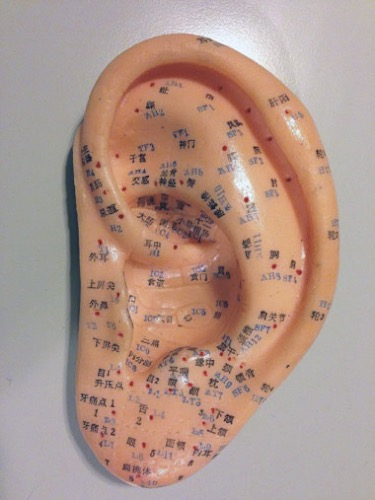 Auricular acupuncture points shown on an ear model.
