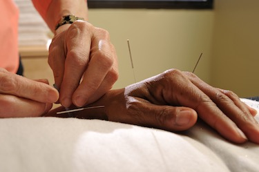 Hand acupuncture.
