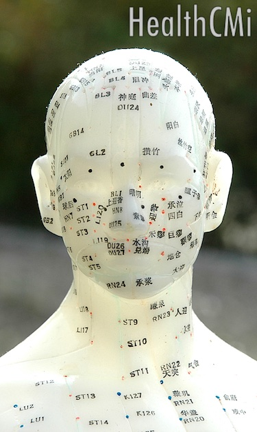 Facial points on an acupuncture doll.