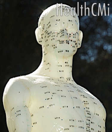 This image of an acupuncture point model shows many acupoints located on the chest and head.