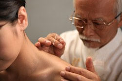 Example of acupuncturists needling a patient.