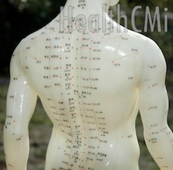 acupuncture relief from low back pain