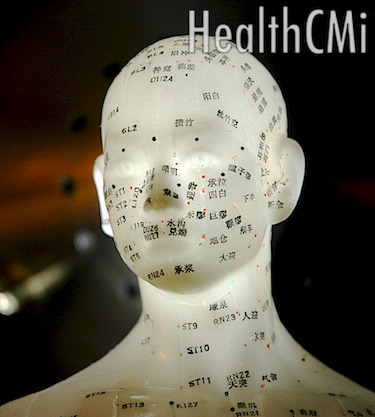 This photo depicts acupuncture points of the scalp on an model.