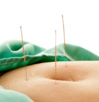 ANTRAC Acupuncture Clinic - Fertility treatment to optimise pregnancy