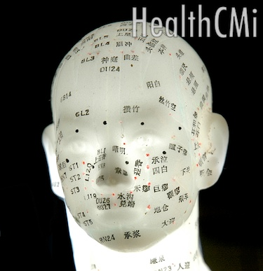 Acupoints of the head are depicted in this model.