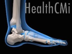 Heel pain is often treated with Kidney Channel and Ashi points.