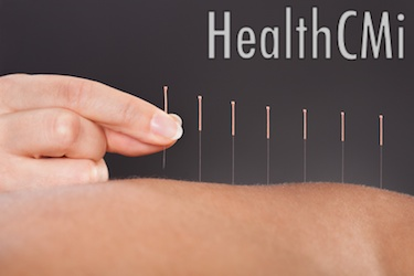 This photo shows acupuncture being applied with filiform needles to the back.