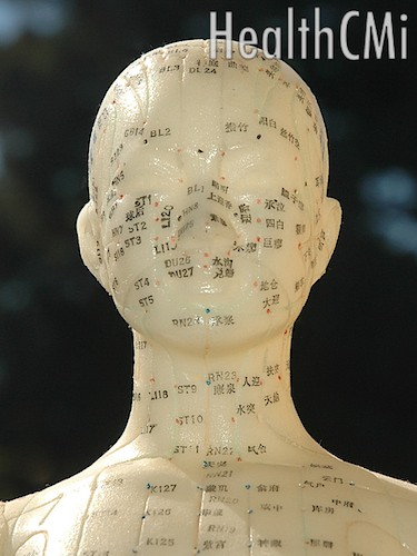 Acupuncture improves gait and balance in Parkinson's disease patients.