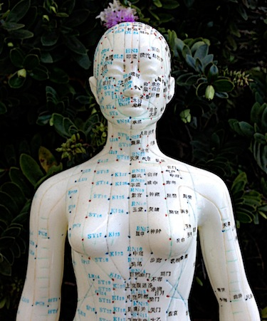 PCOS is successfully regulated including androgen regulation with acupuncture.