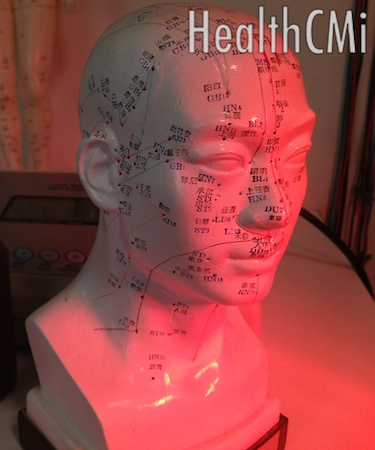 Scalp points are depicted in this plastic model near a red heat lamp.