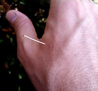 Acupuncture is shown applied to acupoint LI4.