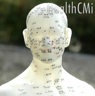Electro-acupuncture is effective for pain reduction according to new MRI and biochemical measurements.